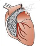 heartworm1